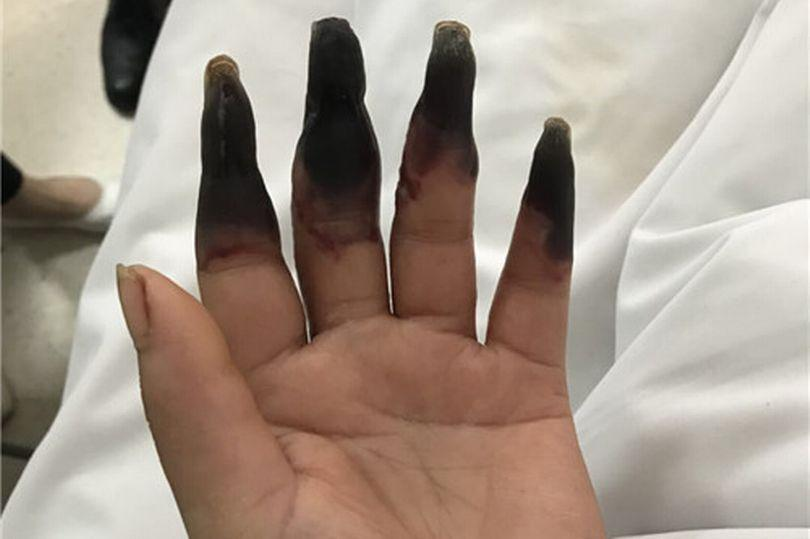 3_Woman-has-eight-fingers-turned-into-black-after-cleaning.jpg
